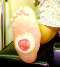 A grossly deformed Charcot's